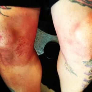 Lee's knee